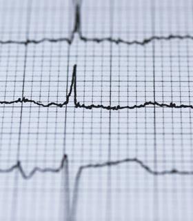 Interpretação de Exames em Cardiologia e Pneumologia